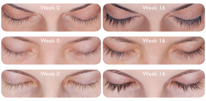 8124adb84da That's why it's important to note that LATISSE (bimatoprost ophthalmic  solution) 0.03% works gradually and remarkably – starting at 4 weeks with  full ...
