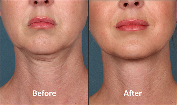 KYBELLA-Patient-Before-and-After-(Front-view)