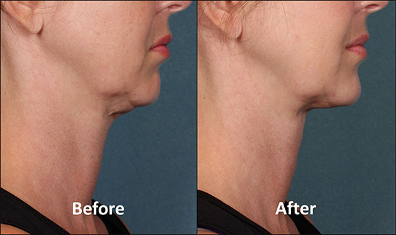 KYBELLA-Patient-Before-and-After-(Side-View)