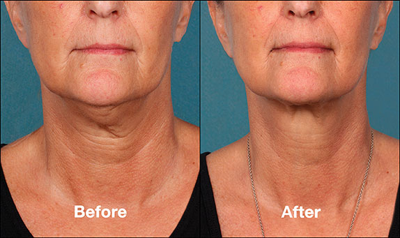 KybellaPatientPR4BeforeAfter(FrontView)
