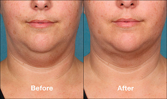 KybellaPatientPR5BeforeAfter(FrontView)