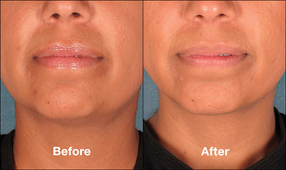 KybellaPatientPR6BeforeAfter(FrontView)