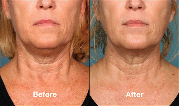 KybellaPatientPR7BeforeAfter(FrontView)