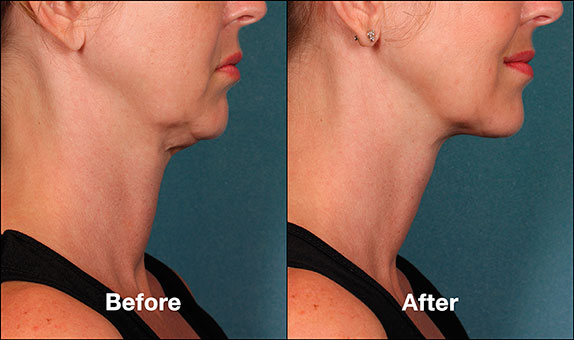 KybellaPatientPRI3BeforeAfter(SideView)