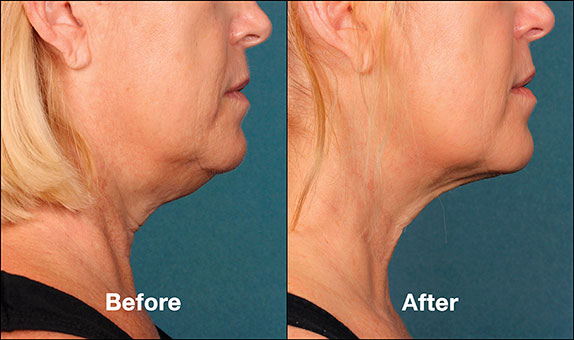 KybellaPatientPRI7BeforeAfter(SideView)